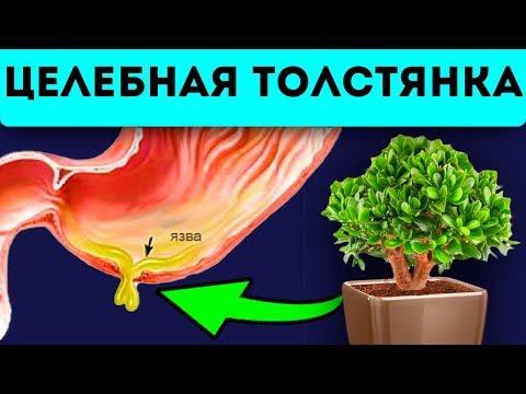 Многие не знают про невероятные целебные свойства денежного дерева | расширение | варикозное | толстянка | свойства | ногтевой | лечебные | денежное | варикоз | дерево | грибок