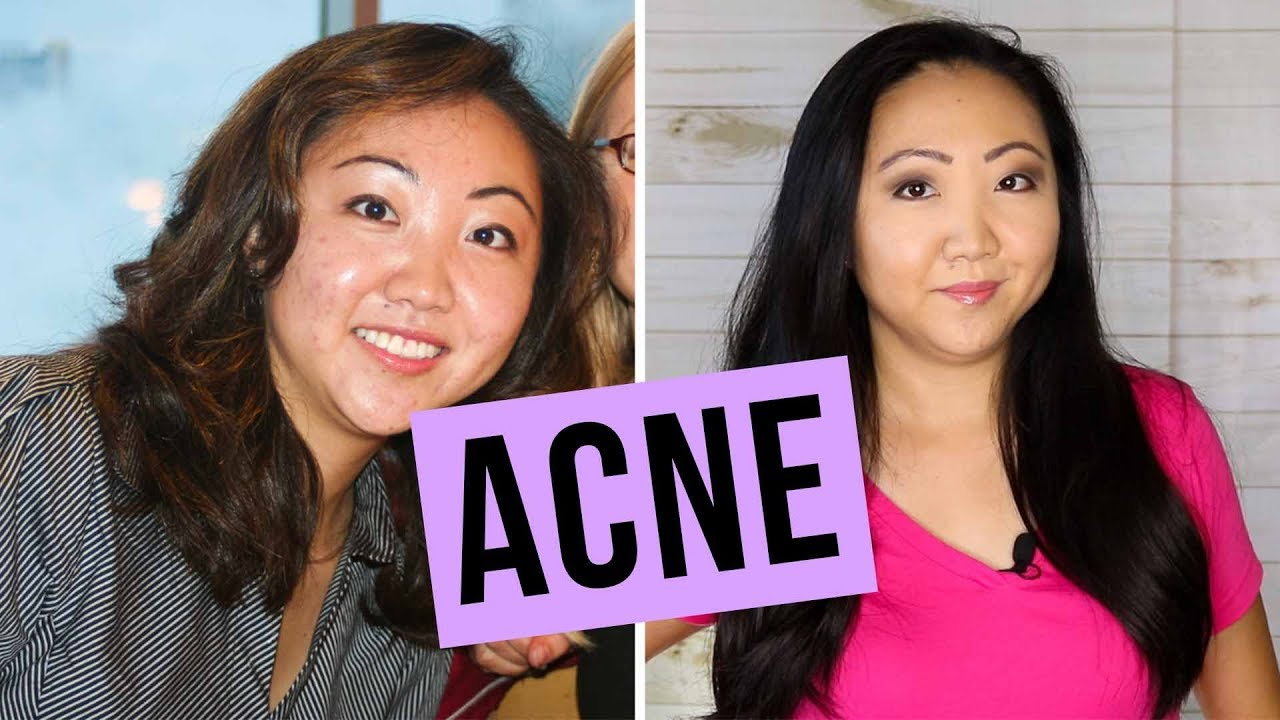 How I Cleared Up My Horrible Acne | OILY / ASIAN SKIN CARE | JEN TALKS  FOREVER