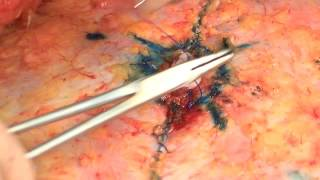 Repeat youtube video Belly Button Beauty: Dr. Patronella's Detailed Approach to Restoring Beauty to the Navel