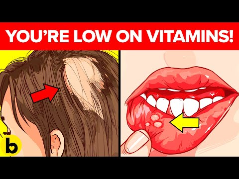 8 Warning Signs That Your Body Is Low On Essential Vitamins