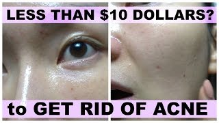 Acne Treatment at Home | Get Rid of Acne with Less than $10 Dollars