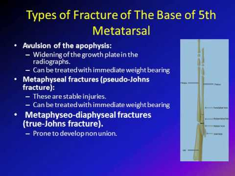 base of the 5th metatarsal fracture