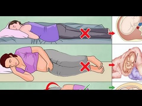How To Lie Down In Bed During Pregnancy 12 Steps With Pictures