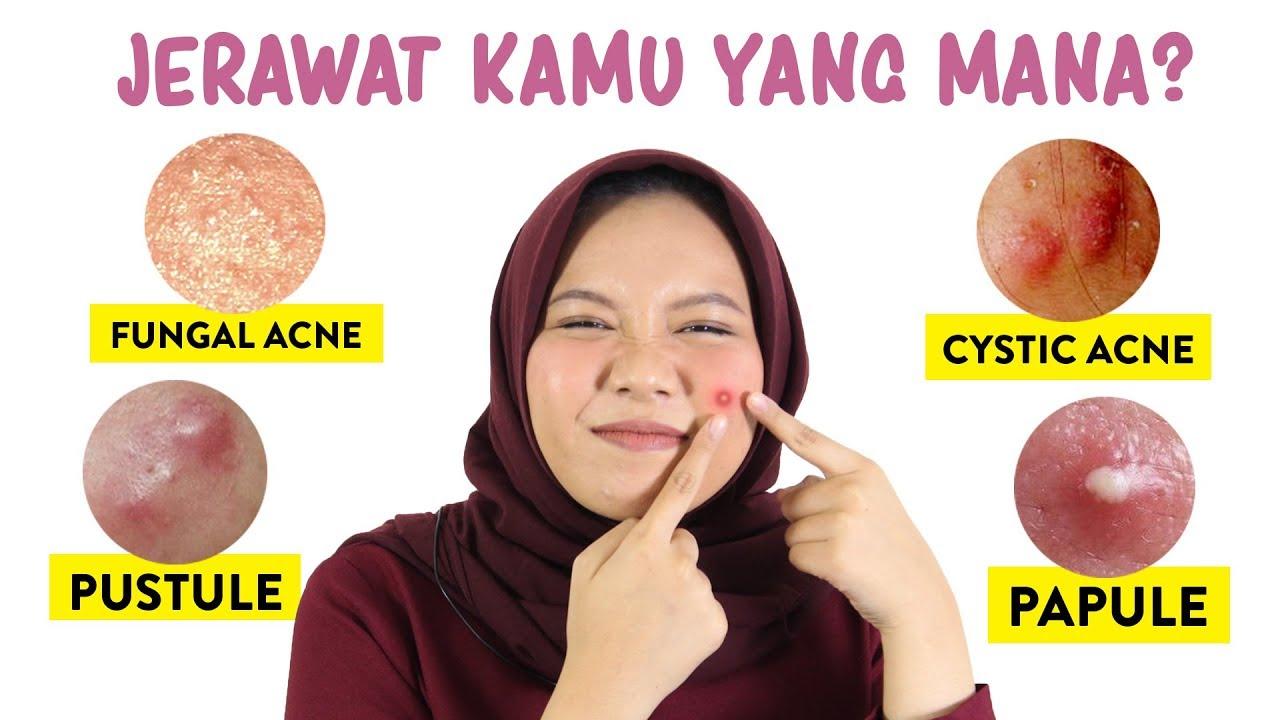 Jenis Jerawat Dan Cara Mengatasinya Skincare101 Youtube
