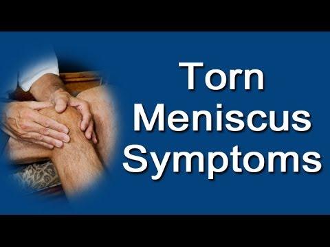 Torn Meniscus Symptoms YouTube