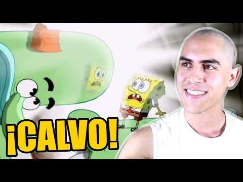 Lo BUENO y lo MALO de ser CALVO | Otra Vez Lunes Show