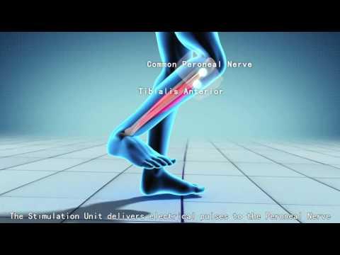 Charmant Therapie (Fußheberschwäche Inno Step WL)   YouTube