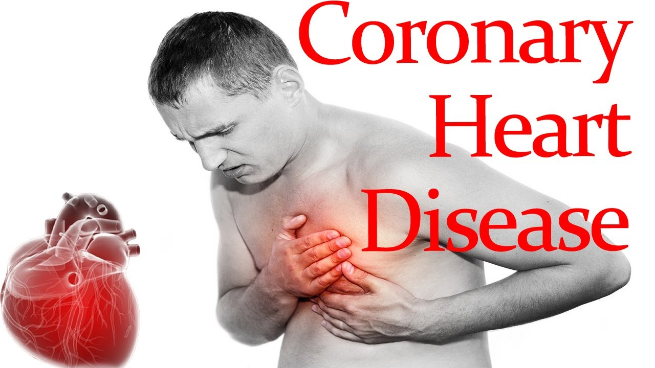 coronary heart Coronary heart disease coronary heart disease (chd), previously called ischaemic heart disease, is when your coronary arteries become narrowed by a gradual build-up of.