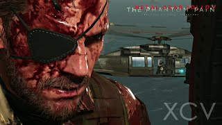 Metal Gear Solid V: The Phantom Pain Walkthrough Part 23 · Episode 17: Rescue the Intel Agents
