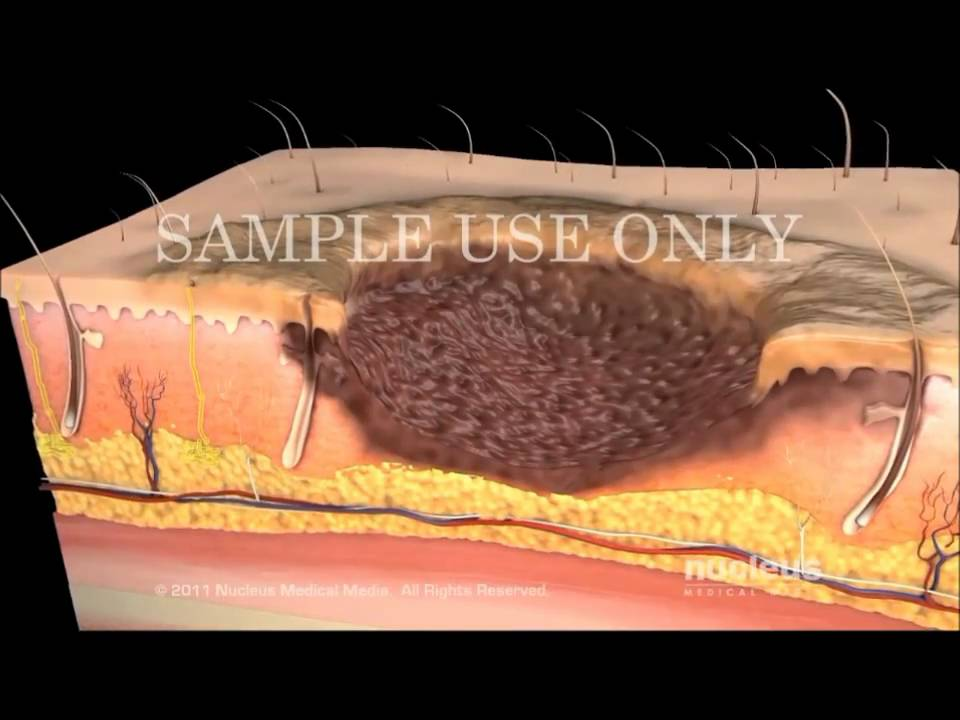 Integumentary System Animations Youtube