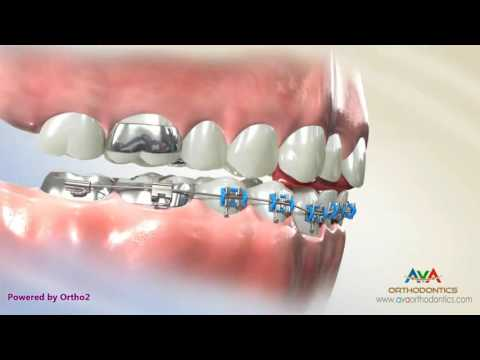 Deepbite Treatment by Fixed Bite Plate for Front Teeth - Orthodontic Treatment