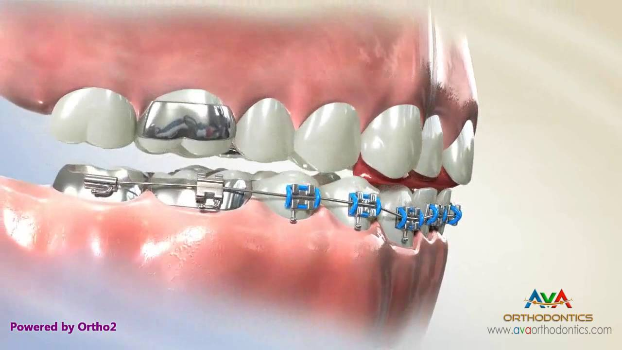Deepbite Treatment By Fixed Bite Plate For Front Teeth