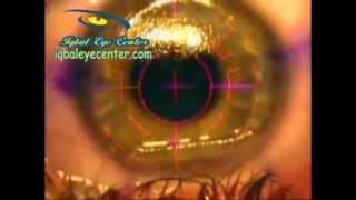 LASIK For Correction of Myopia and Astigmatism