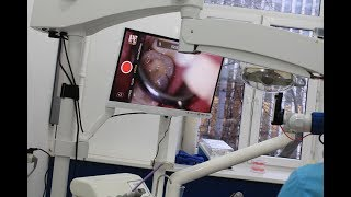 Лечение с применением операционного микроскопа - Клиника Святого Даниила
