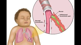 APP Guidelines for Bronchiolitis treatment