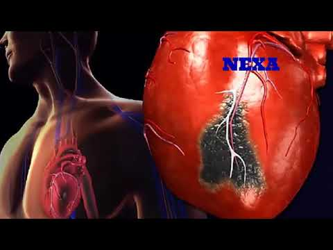 First aid for heart attack | heart attack aane pr kya kare