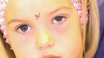 Poskiontelon tulehdus – Lastenlääkäri: Sairaudet ja oireet