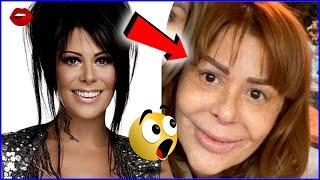 Antes y Después Peores Cirugías a Famosos Latinos   #FamososAD