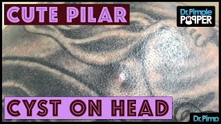 C'mon now, THIS is a CUTE Pilar Cyst!!