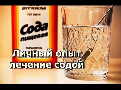 Личный опыт лечение содой