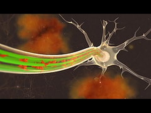 ALZHEIMER'S - CAN WE PREVENT IT?