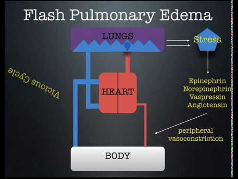 Flash Pulmonary Edema lecture by Dr Zevallos  YouTube