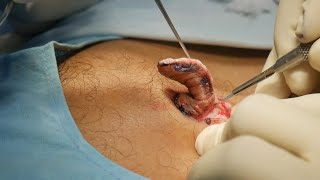 How to Remove Kel๐ids On Chest - Surgical Method
