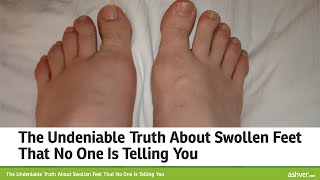 The Undeniable Truth About Swollen Feet That No One Is Telling You