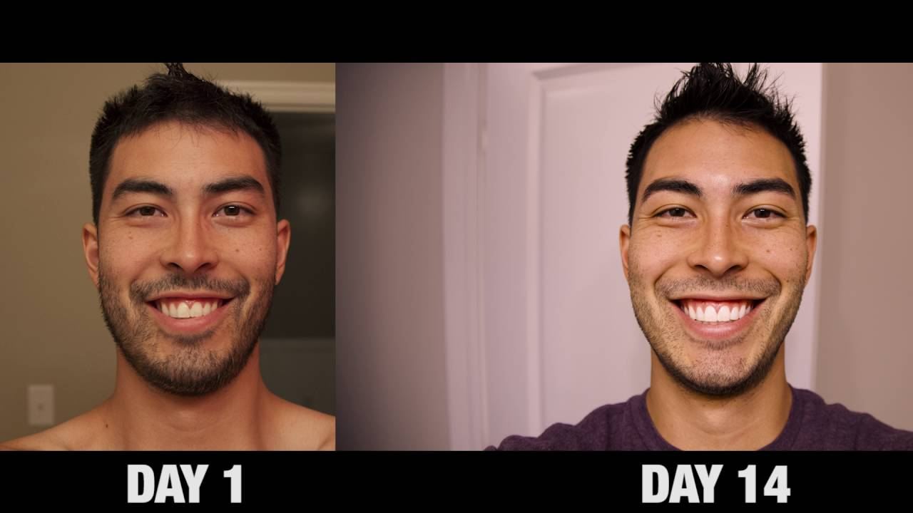 Does Whitening Toothpaste Really Work Crest 3d White Luxe