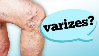 Sangramento da vulva varizes
