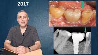 Почему появляются щели между зубами и имплантами?