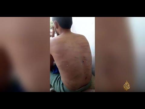 فيديو لمواطن يمني تعرض للتعذيب بسجن إماراتي  - 17:21-2017 / 6 / 26