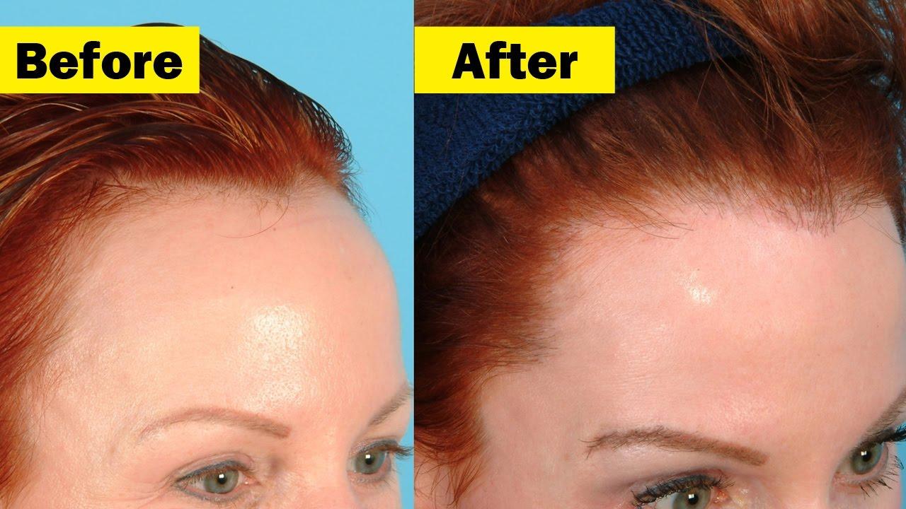 Hair Growth How to Make Hair Grow in Bald Spots Bald
