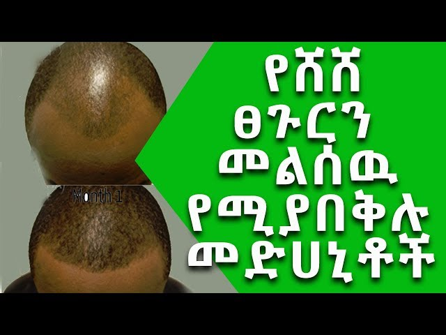 Ethiopia፡ Magical medicines that resurfacing hair