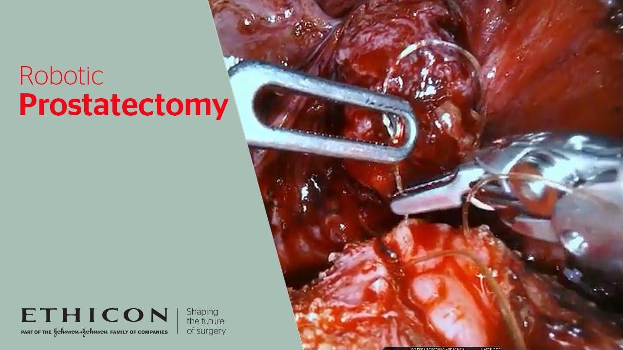stratafix robotic prostatectomy video stratafix robotic prostatectomy video