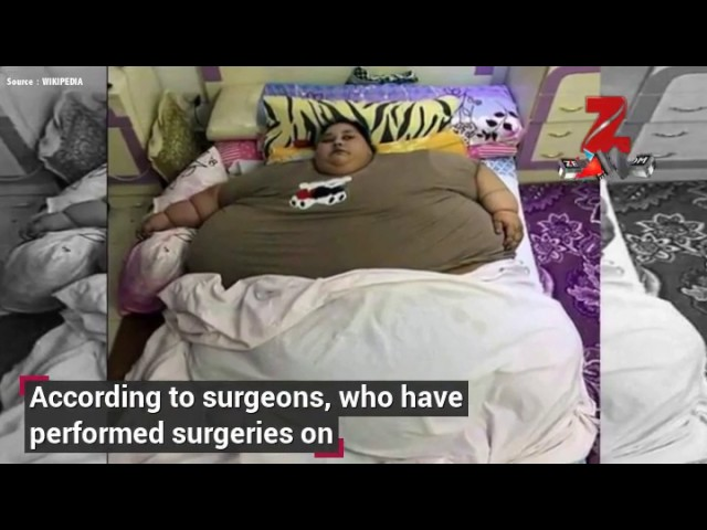 Eman Ahmed, world's heaviest woman, in Mumbai for bariatric surgery: What to expect from w...
