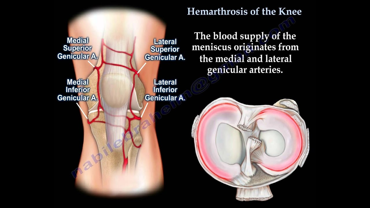 Hemoarthrosis of the knee,Knee swelling  Everything You Need To Know - Dr   Nabil Ebraheim