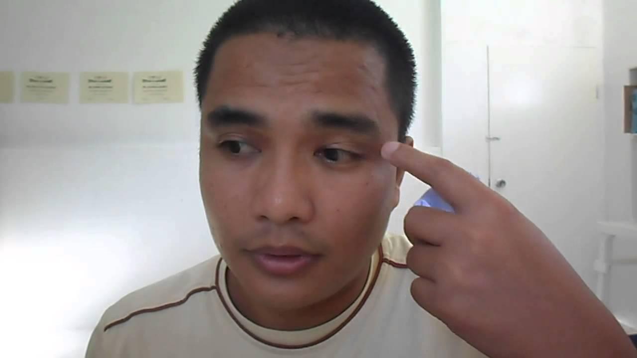 How To Get Rid Of Eyebrow Dandruff Youtube