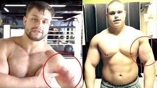 Макс изменился после жесткой травмы!