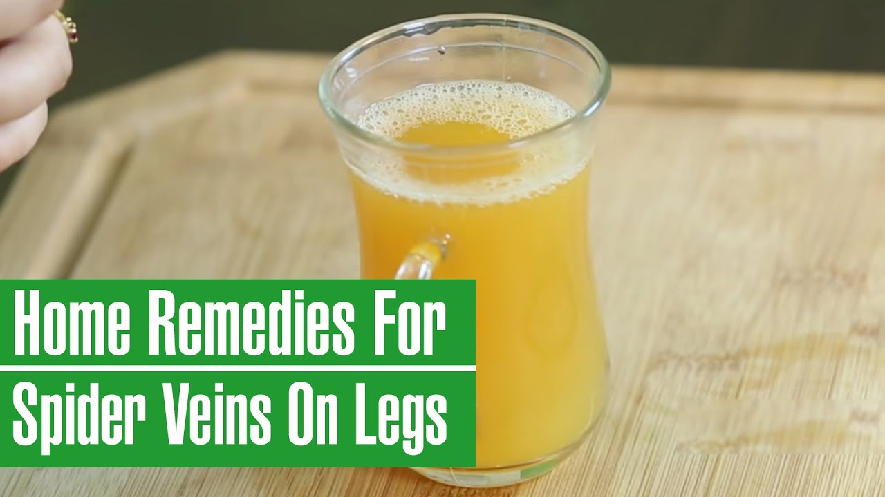 How To Get Rid Of Spider Varicose Veins On Legs