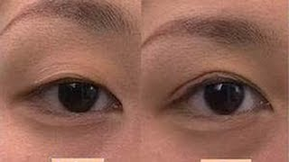 Japanese Koji Eye talk double eyelid glue review