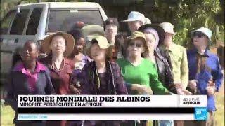 1ère journée mondiale des Albinos - Une minorité persécutée en Afrique