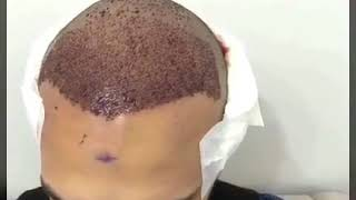 Saç Hakkında Her Şey #OsmanDemir