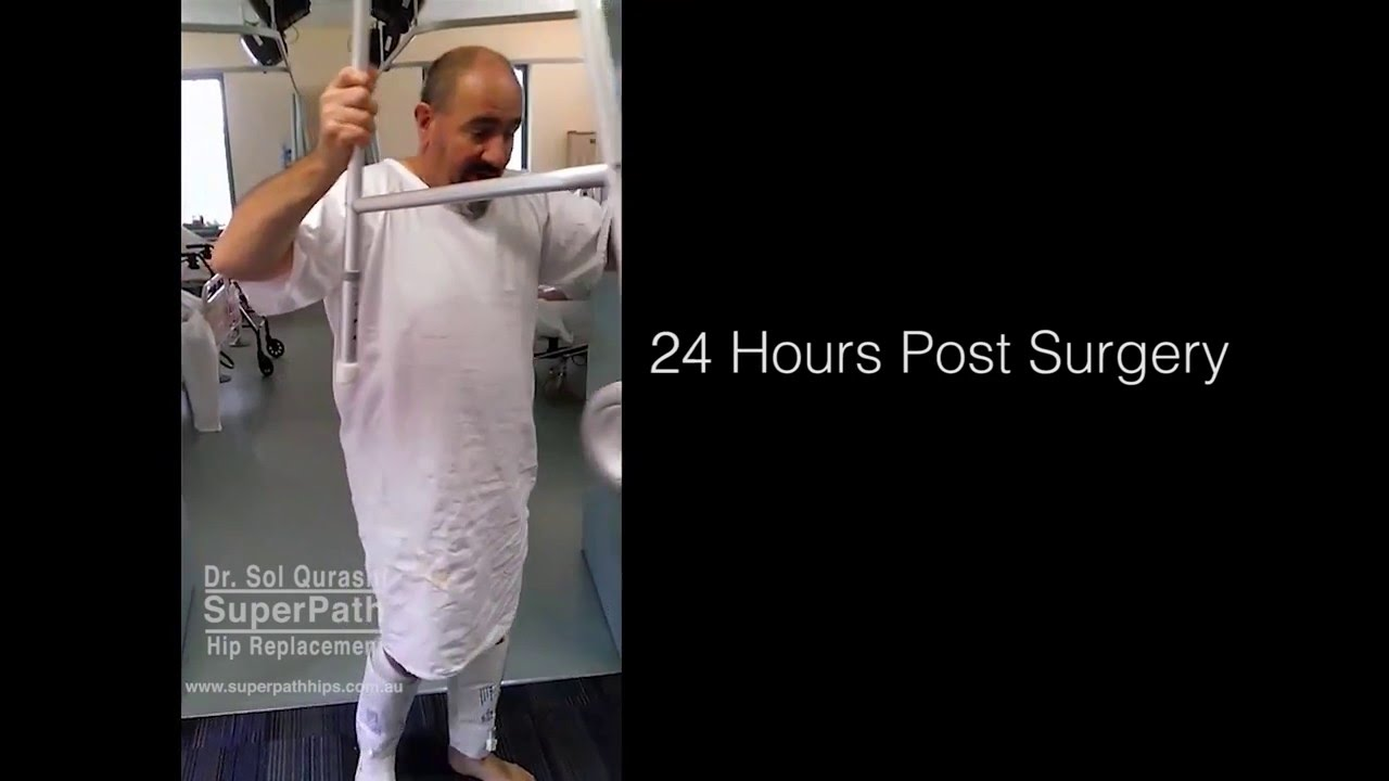 SuperPATH Hip Replacement | Walking 24 Hours Later