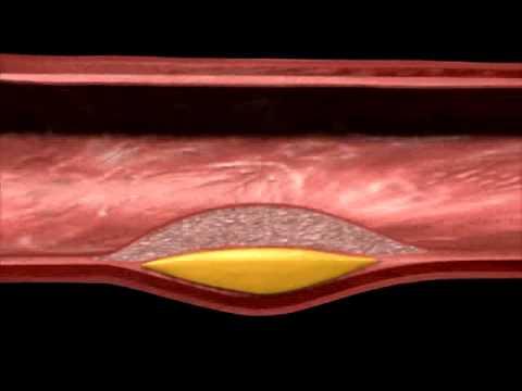 Manfaat pemberian statin