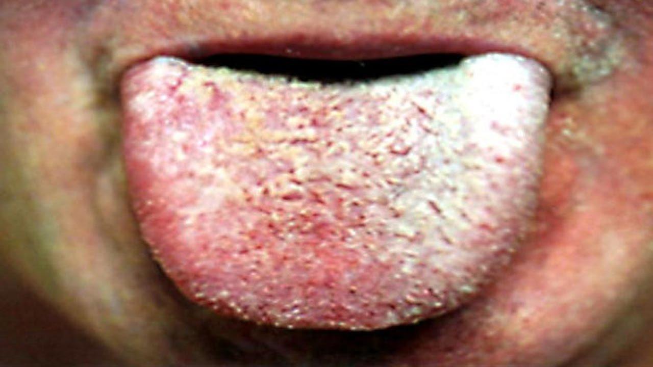 white tongue
