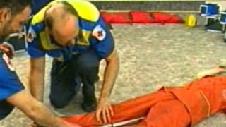 видео Оказание первой медицинской помощи при переломах! Видео