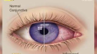 як зробити очей Ендер