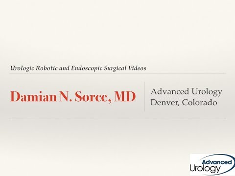 Right Robotic Nephrectomy