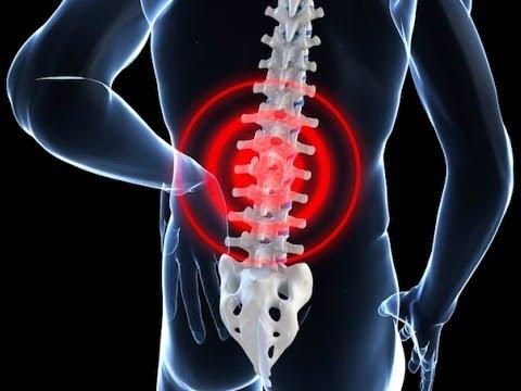 hqdefault - Las Vegas Back Pain Center